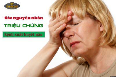 Các nguyên nhân và triệu chứng bệnh xuất huyết não