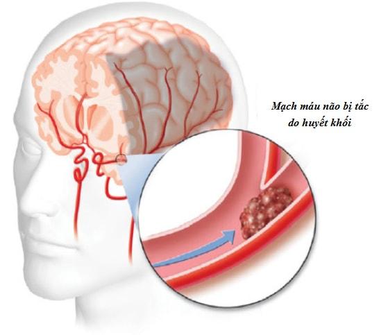 tắc nghẽn mạch máu não