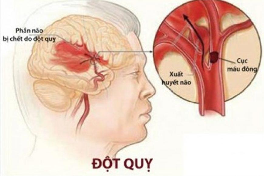 Phân loại, nguyên nhân và các yếu tố nguy cơ bệnh đột quỵ não (tai biến mạch máu não)