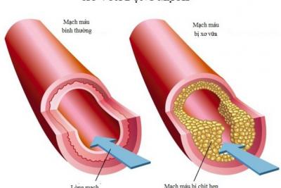 Xơ vữa động mạch và các yếu tố nguy cơ