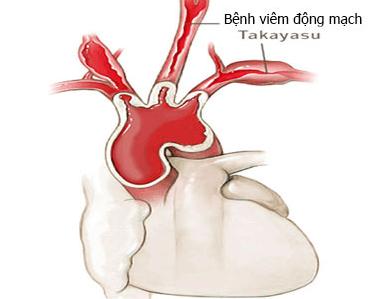 Viêm động mạch là gì