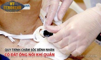 Quy trình chăm sóc bệnh nhân có đặt ống nội khí quản