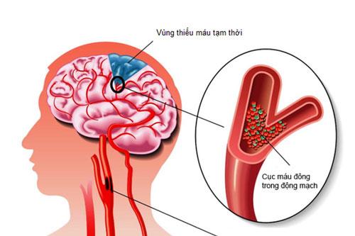 Cục máu đông tại động mạch não