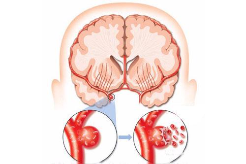 Gây vỡ mạch máu não